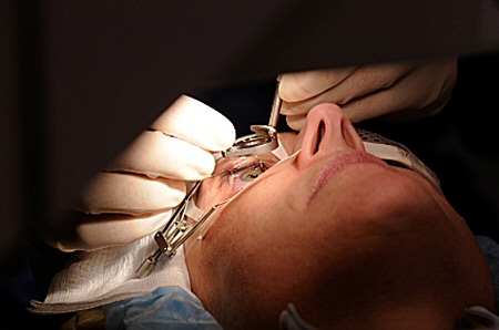 keepingeyeopenlaser surgery