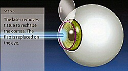 lasikeyesurgeryvideo