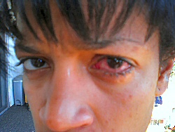 red eye infection