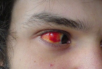eyeinfection