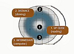 How Multifocal contact lenses work
