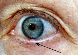eyestyepicture